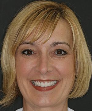 Kimrey's smiling portrait after dental treatment
