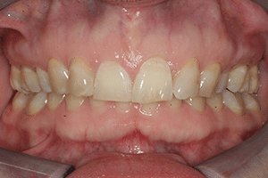 Close up of Kimrey's discolored overbite before dental treatment