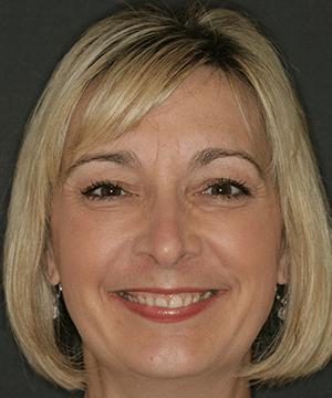 Kimrey's smiling portrait before dental treatment