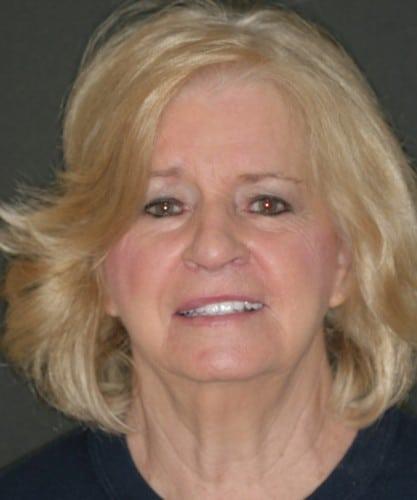 Margie's smiling portrait after dental treatment