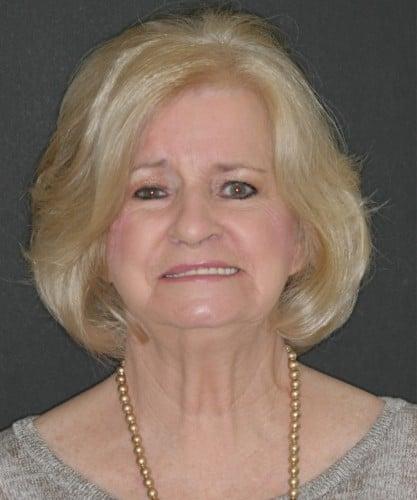 Margie's smiling portrait before dental treatment