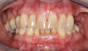 Close up of patient's yellowed and uneven teeth before dental treatment