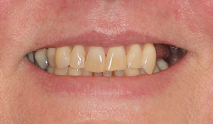 Close up of patient's smile before dental treatment