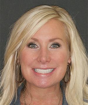 Patient's smiling portrait after dental treatment