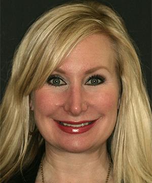 Patient's smiling portrait before dental treatment