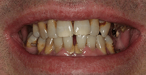 Close up of Wilson's discolored teeth and receding gums before dental treatment