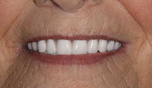 Close up of Jan's even and white smile after dental treatment