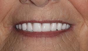 patient1 after smile