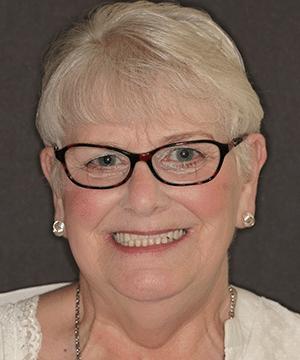 Jan's smiling portrait before dental treatment