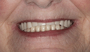 Close up of Jan's smile before dental treatment