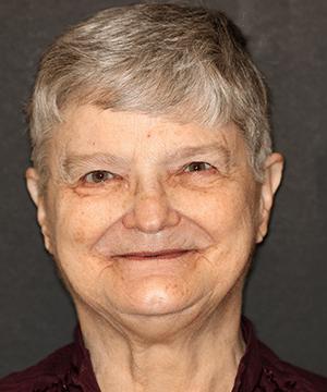 Karen's profile before dental treatment