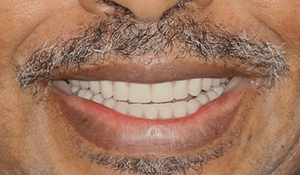 Close up of Bill's straight, white smile after dental treatment