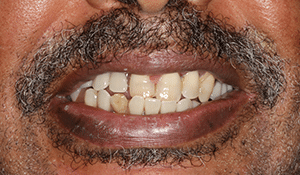 patient3 before smile