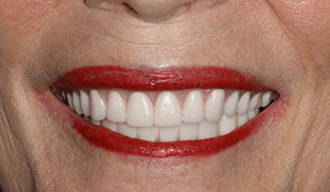 Close up of Sandra's bright and straight smile after dental treatment