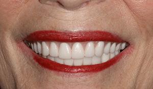 patient4 after smile