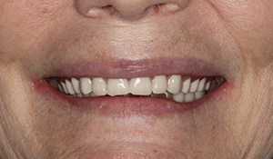 Close up of Sandra's crooked smile before dental treatment