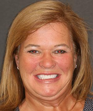 Loretta's smiling portrait after dental treatment