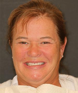 Loretta's smiling portrait before dental treatment