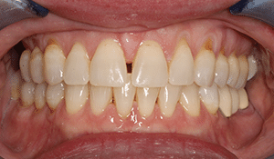 Close up of Loretta's smile before dental treatment