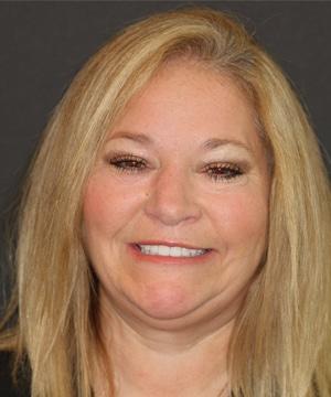 Michelle's smiling portrait after dental treatment
