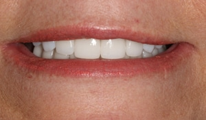 Close up of Michelle's bright smile after dental treatment