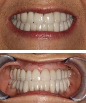 Close up of patient's smile after dental treatment