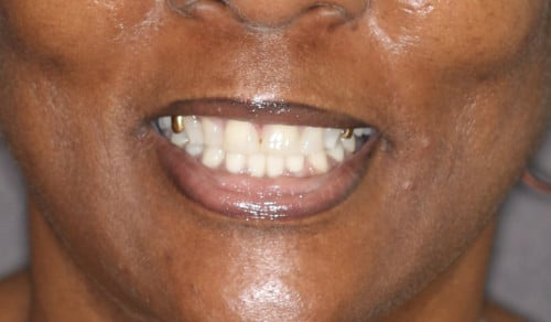 Close up of Renee's smile before dental treatment