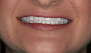Close up of Amberly's bright smile after dental treatment