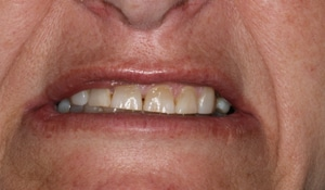 Close up of Michelle's discolored and gapped teeth before dental treatment