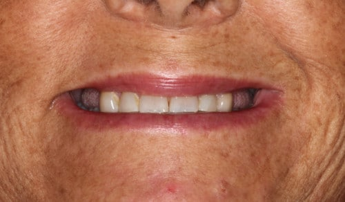 Close up of Patrice's smile before dental treatment for discoloration