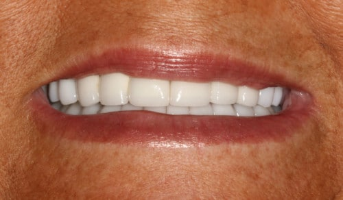 Close up of Patrice's bright smile after dental treatment