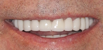 Close up of patient's straight and white teeth after receiving treatment