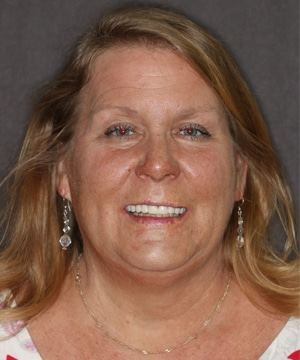 Janis' smiling portrait after dental treatment