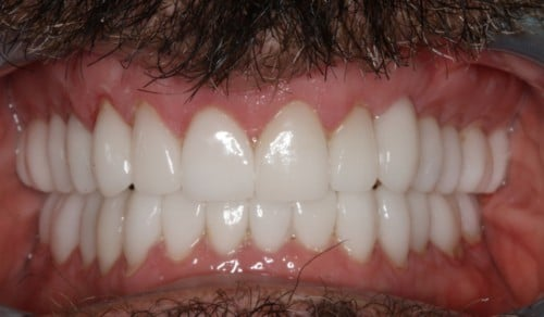 Close up of Frank's white, straight smile after dental treatment