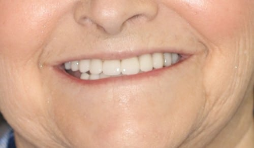 Close up of Jean's smile after dental treatment for discoloration and gaps