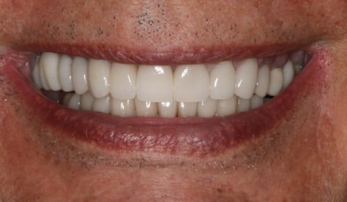 Close up of Robert's bright and straight smile after dental treatment