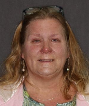 Janis' smiling portrait before dental treatment