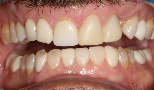 Close up of Frank's smile before dental treatment for discoloration and crookedness