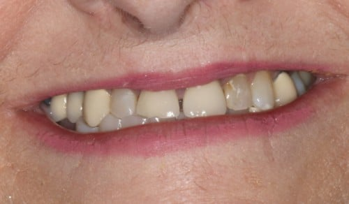 Close up of Jean's discolored and gapped smile before dental treatment