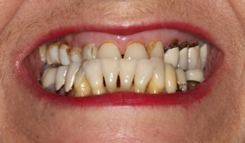 Close up of patients smile before treatment for underbite, discoloration, and gaps