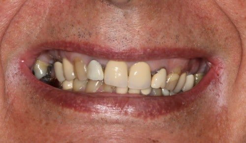 Close up of Robert's crooked and discolored teeth before dental treatment