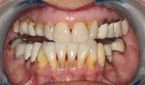 Close up of patient's teeth with discoloration and crookedness