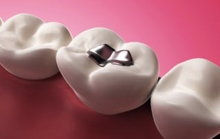 The Complete Guide to Replacing Metal Fillings