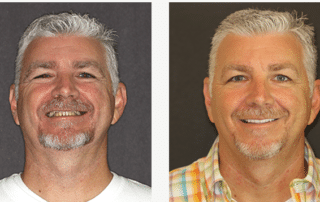 Patient's smile before and after FOY® Dentures