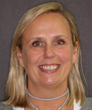 Courtney's smiling portrait before dental treatment