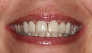 Close up of Courtney's discolored teeth before dental treatment