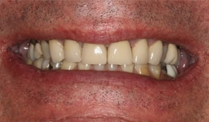 Close up of Daniel's discolored smile before dental treatment