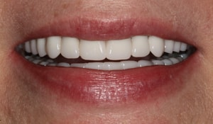 Close up of Jane's bright and straight smile after dental treatment