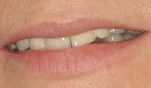 Close up of Jane's discolored and crooked teeth before dental treatment