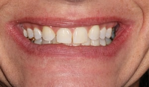 Close up of Kelly's discolored and gapped smile before dental treatment